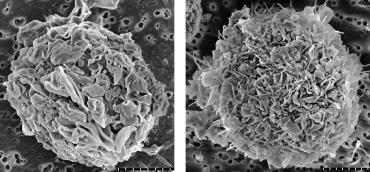 Sacnning electron microscopy images of dendritic cells