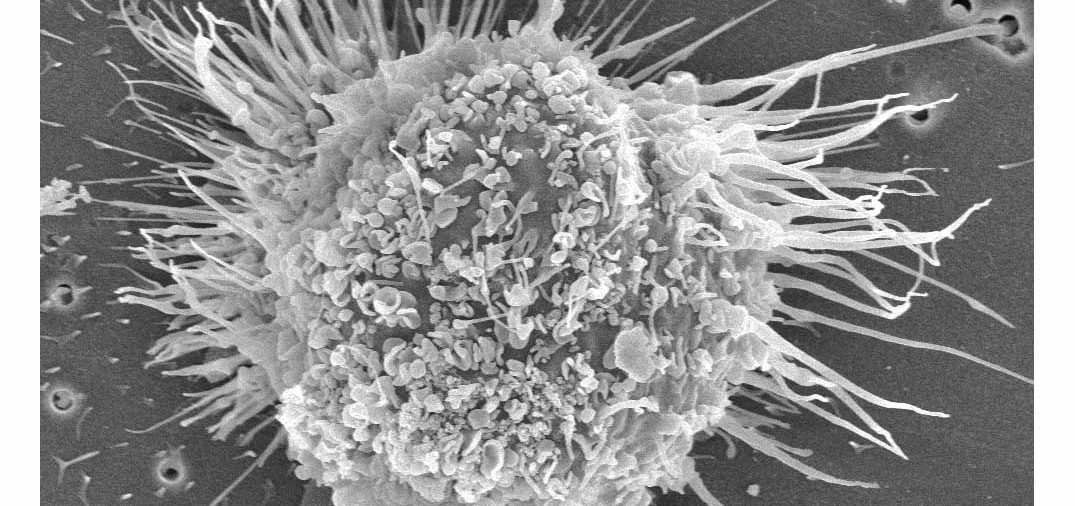 Immune discovery set to boost cancer therapies (May 2019)